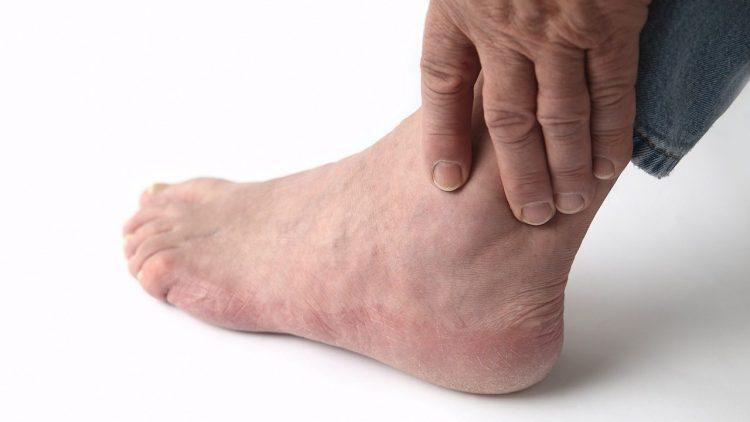 Боли в суставе при артрите