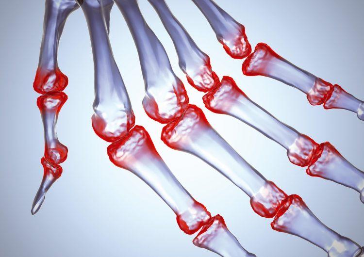Воспаленные суставы при артрите