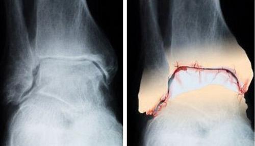 Деформация сустава появляется на третьей стадии болезни
