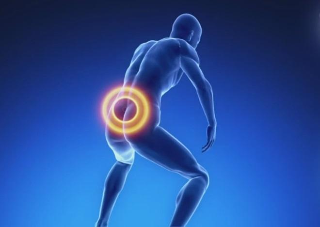 Корешковый синдром при остеохондрозе