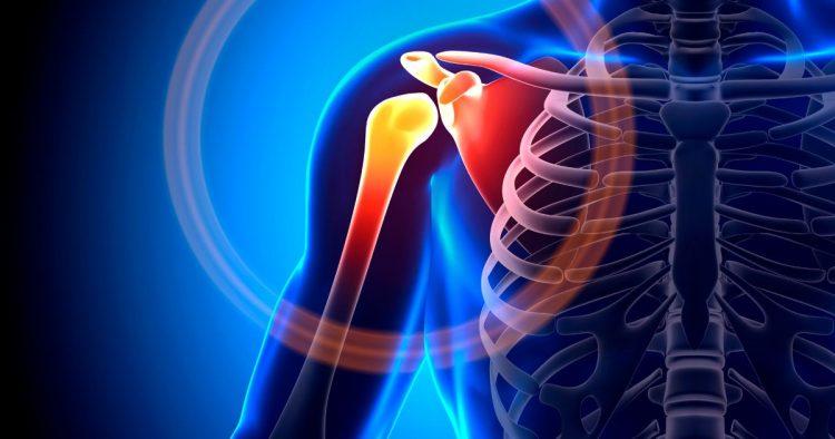Пораженный остеохондрозом сустав
