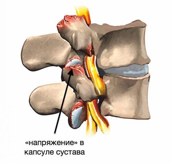Спондилоартроз в капсуле сустава