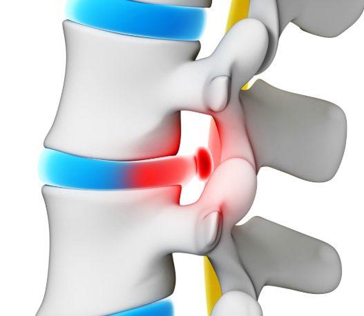 Остеофиты с острыми краями провоцируют воспаление