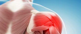 Остеохондроз плеча