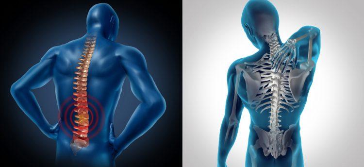 Воспаление при остеохондрозе позвоночника