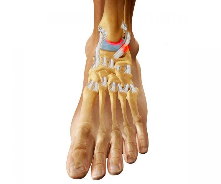 Поврежденный артрозом сустав