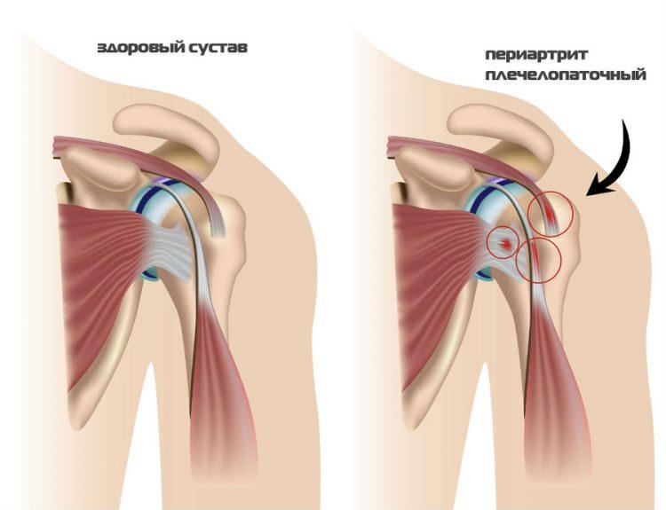 Здоровый сустав и плечелопаточный периартрит