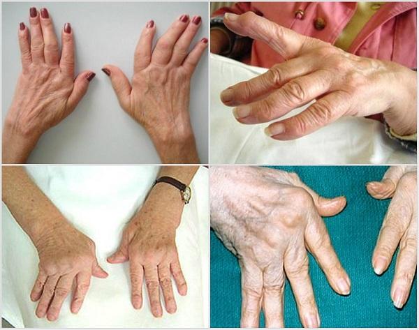 Полиартрит пальцев рук - заболевание, которое встречается довольно часто