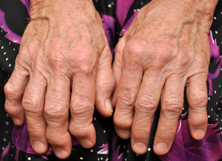При данной патологии может снижаться чувствительность пальцев