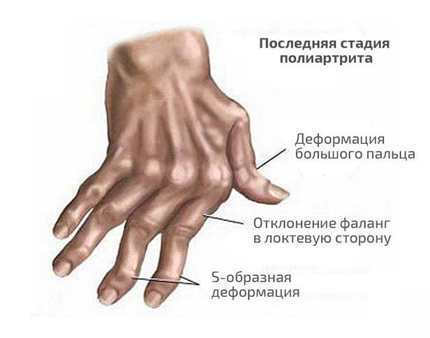 Деформация кистей рук на последней стадии недуга