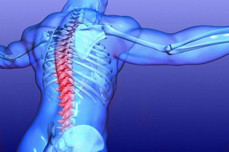 Поражение корешков спинного мозга