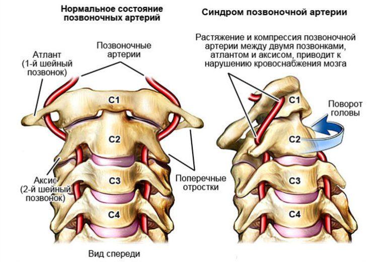 Нормальное состояние артерий и патология