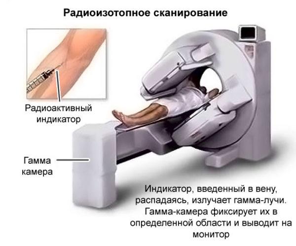 Радиоизотопное сканирование хребта
