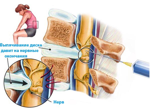 Укол от остеохондроза шейного отдела