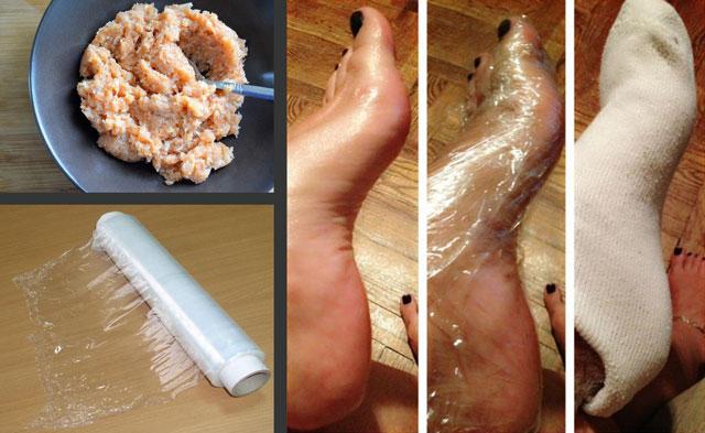 Применение растирок при артрозе голеностопного сустава