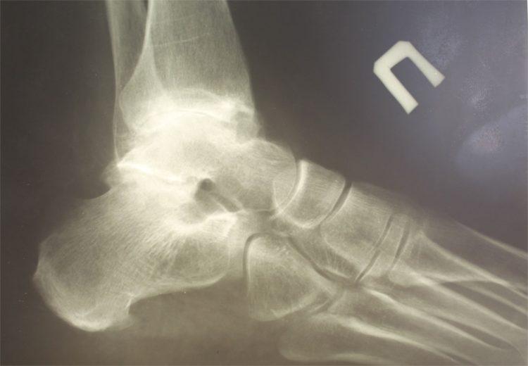Рентген - один из методов исследования патологии