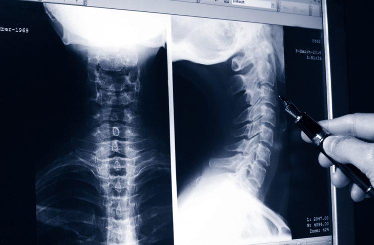 Стандартный снимок рентгена