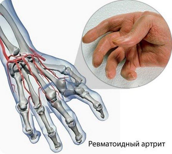 Ревматоидный артрит может развиваться из-за нескольких причин