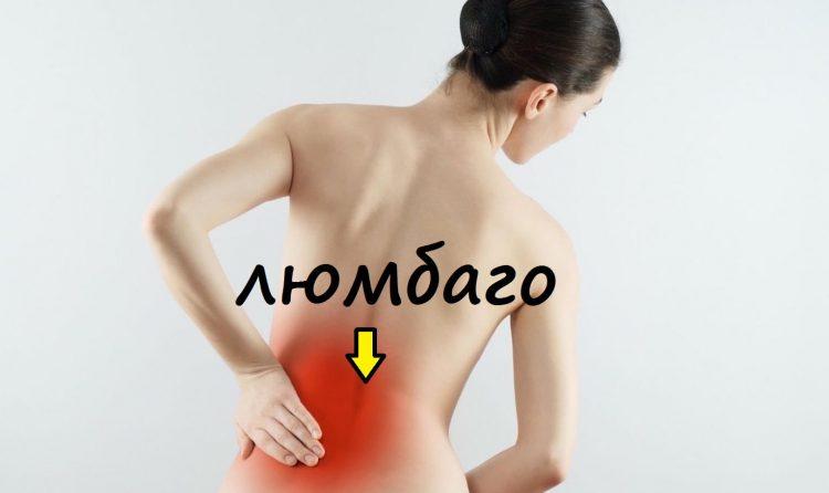 Люмбаго при остеохондрозе