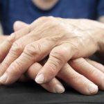 Руки при полиартрите