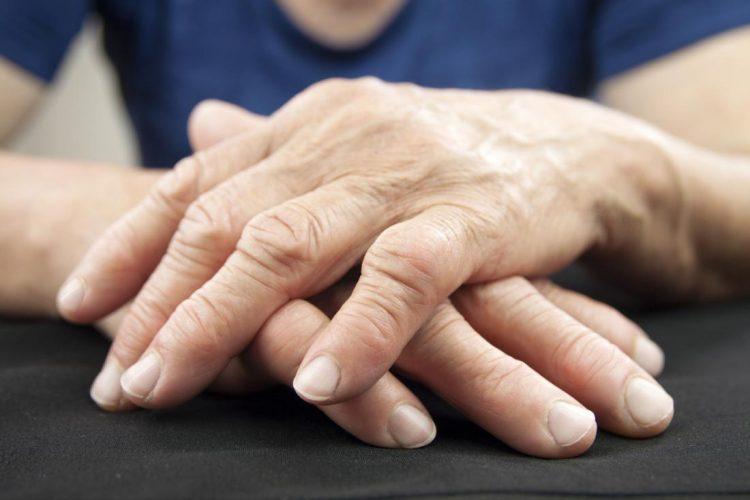 Внешний вид рук при полиартрите