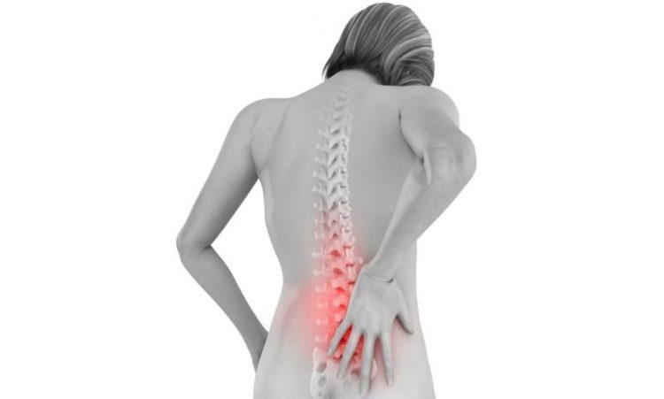 Остеохондроз поясничного отдела обладает ярко выраженными симптомами