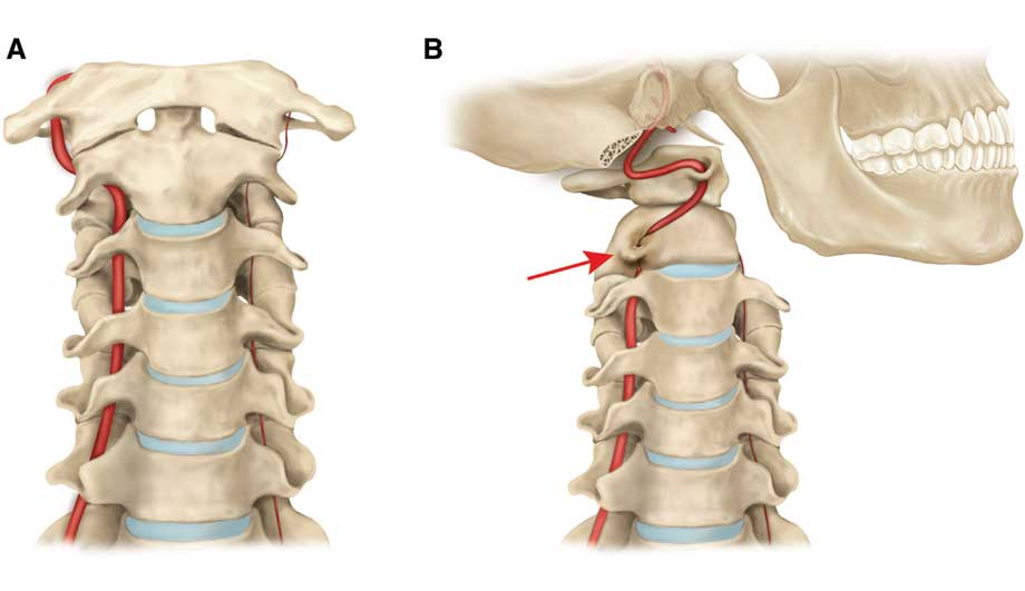 Синдром позвоночной артерии способен вызывать у человека большой дискомфорт