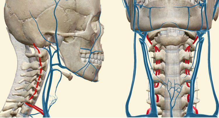 Сосудистый синдром при остеохондрозе