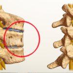 Спондилоартроз сустава