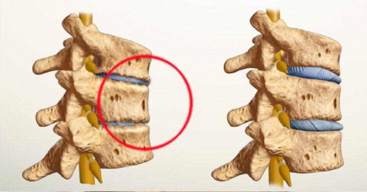 Поврежденный сустав спондилоартрозом