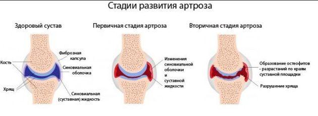 Как развивается артроз