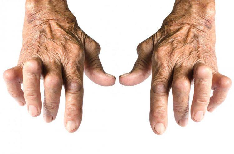 Кисти рук, пораженные полиартрозом