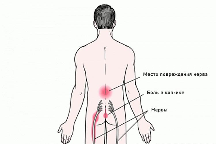Позвоночный синдром при остеохондрозе
