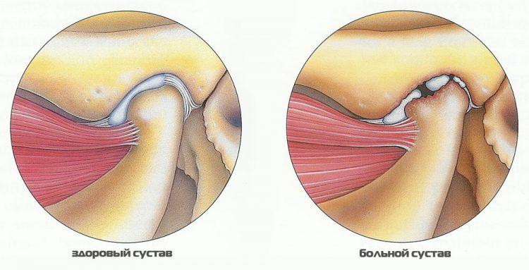 Как выглядит здоровый и больной сустав