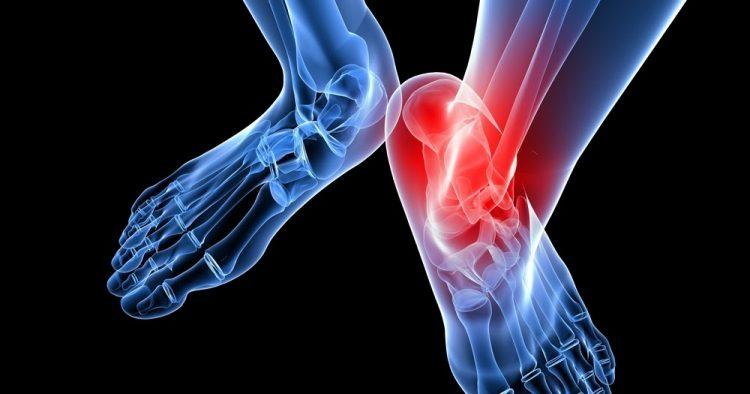 Артрит может протекать в острой и хронической формах