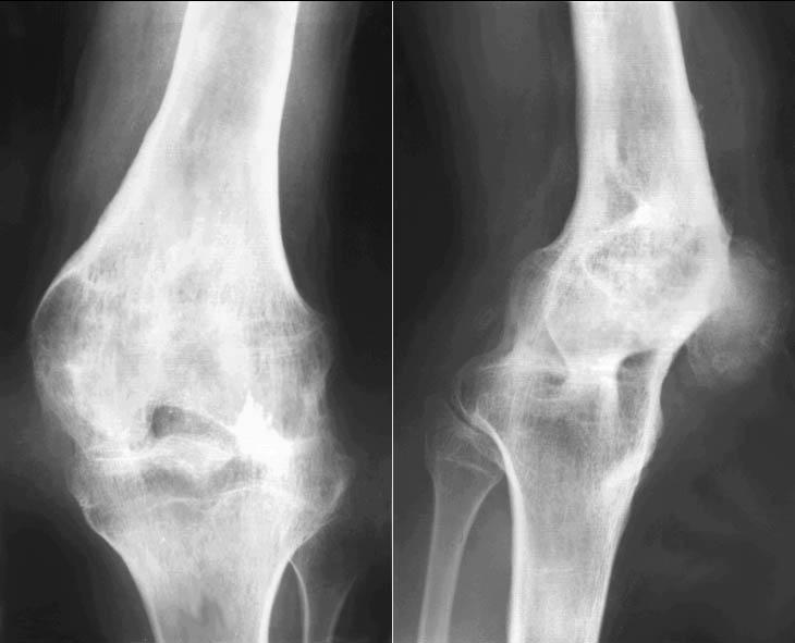 Диагностировать патологию можно при помощи рентгена