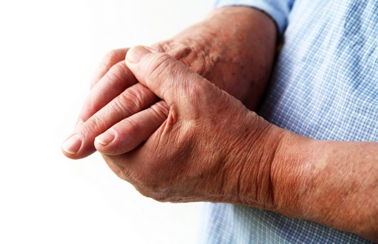 Как лечить артрит пальцев рук народными средствами