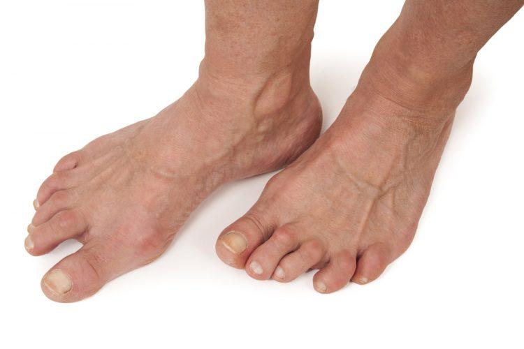 Артрит стопы сопровождается очень неприятными симптомами