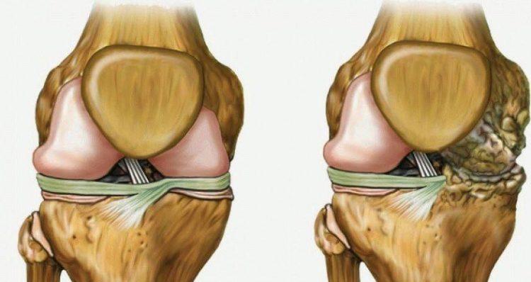Поврежденный сустав и здоровый