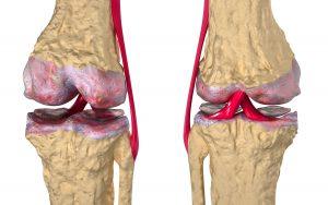 Повреждение сустава при артрозе