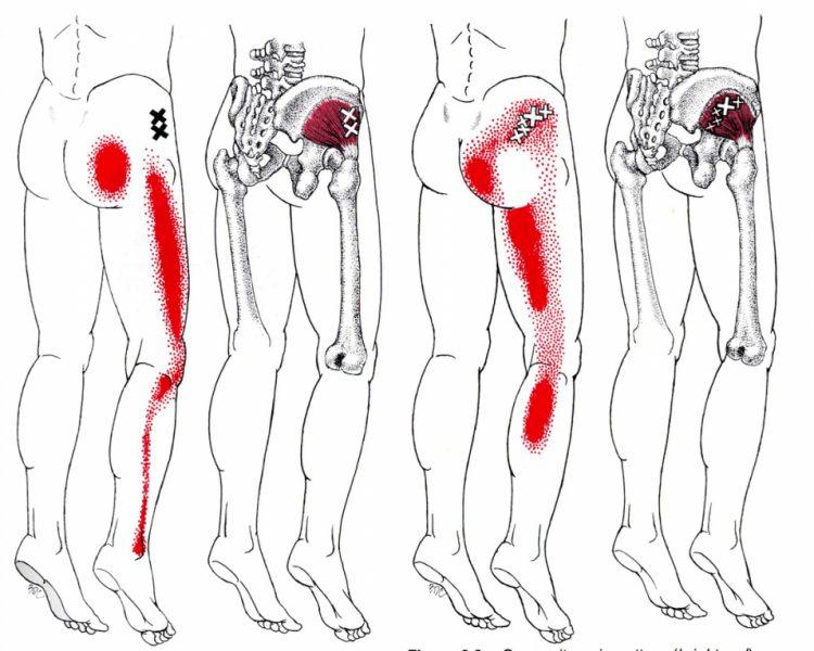 Болевые ощущения в ногах и ягодице