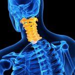 Боли в шее при патологии