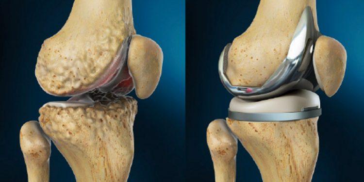 Эндопротезирование коленного сустава - один из вариантов хирургического лечения