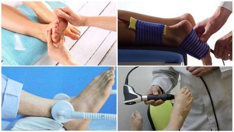 Физиотерапевтическиеметоды лечения подагры