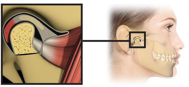 Гнойный артрит приносит огромный дискомфорт больному