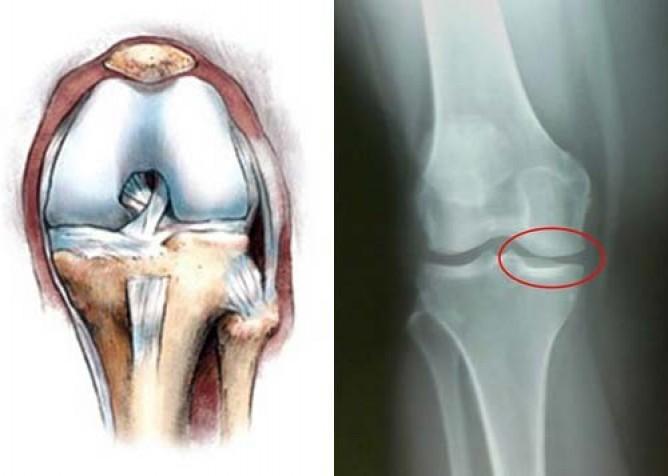 Деформация и разрушение костной ткани