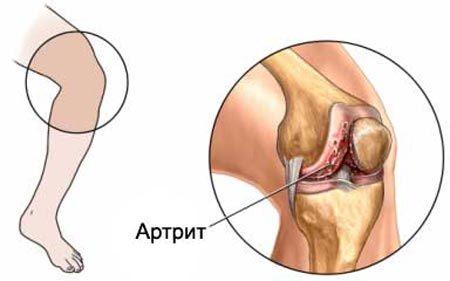 Грибковая форма артрита суставов