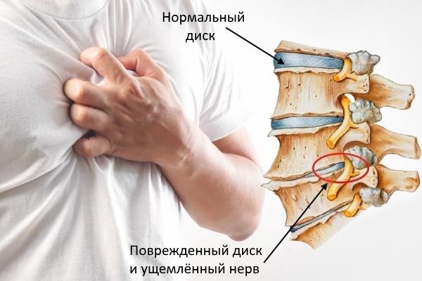 Здоровый и поврежденный диск при хондрозе