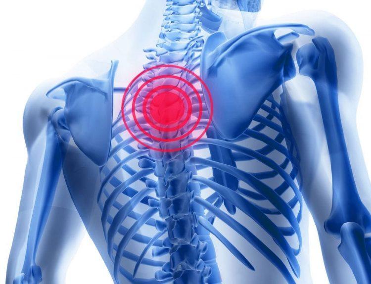 Локализация боли в грудном отделе