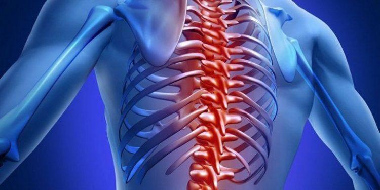 Лечение грудного спондилоартроза должно быть своевременным